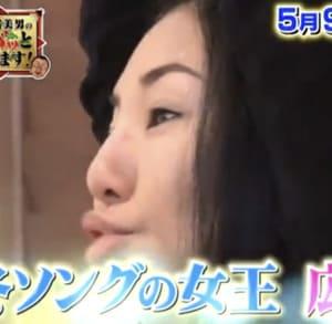 広瀬香美の鼻は整形
